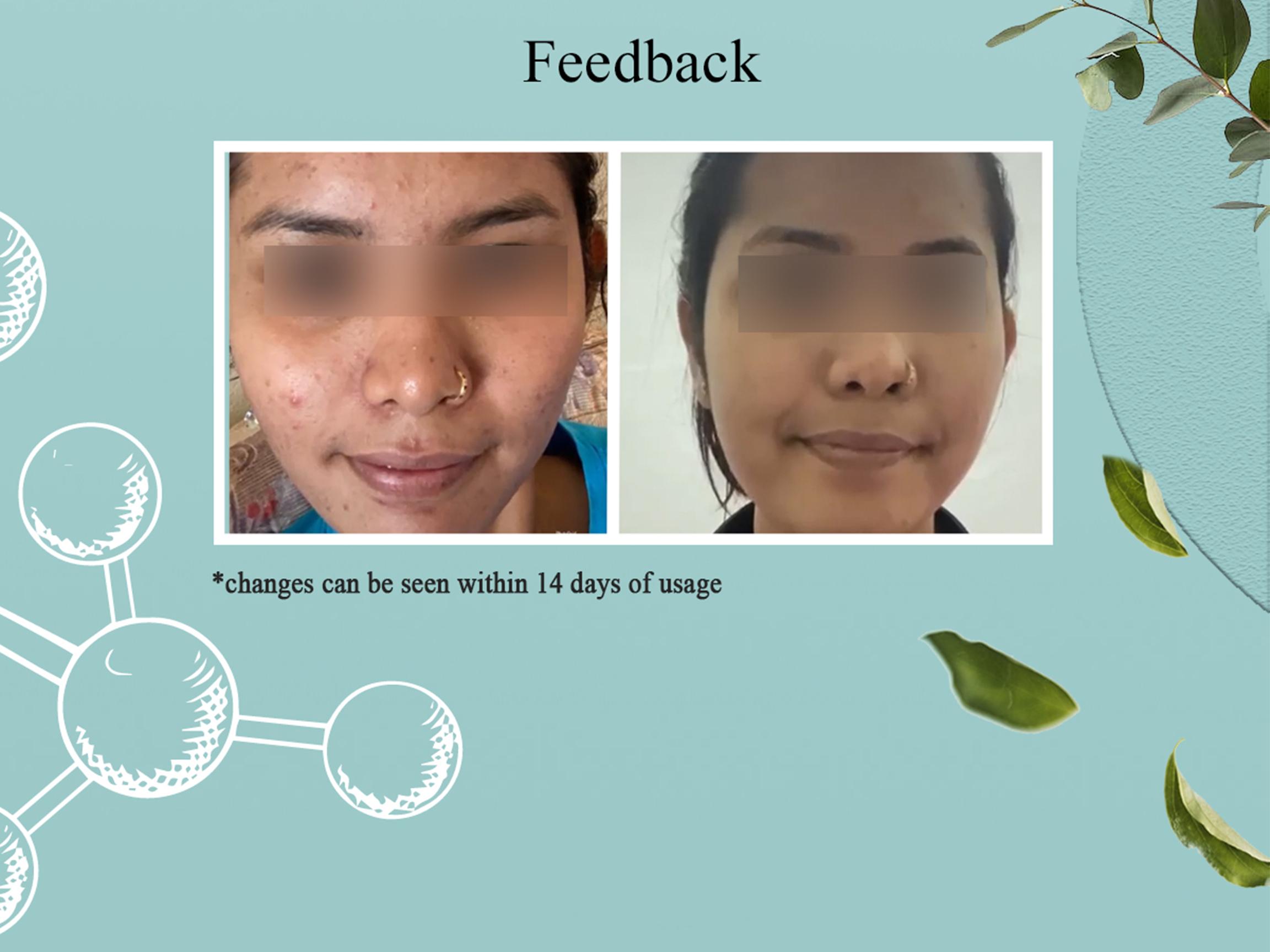 acne-feedback
